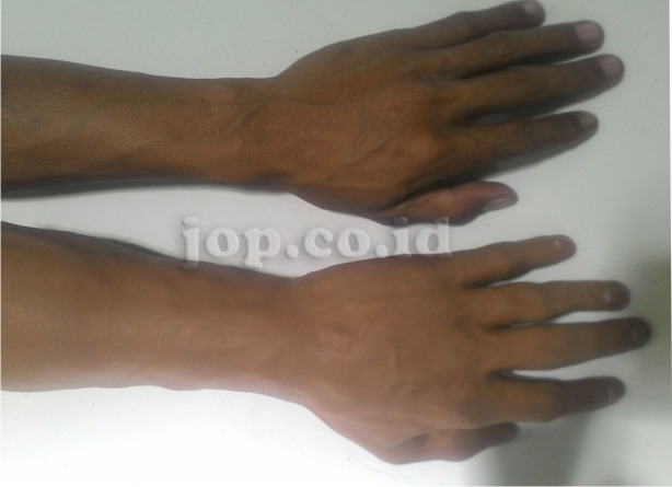 alamat pembuat tangan palsu di jawa